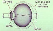 I principali difetti visivi l'occhio ipermetrope