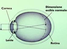I principali difetti visivi l'occhio miopia